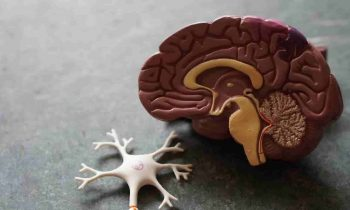 Understanding Stroke: Diagnosis and Treatment